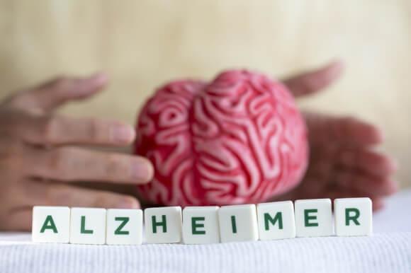 Alzheimer: ces avancées de la science qui donnent espoir