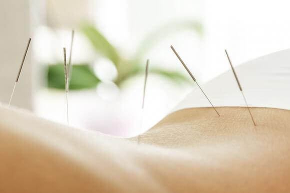 Electroacupuncture, la piste prometteuse contre l'incontinence
