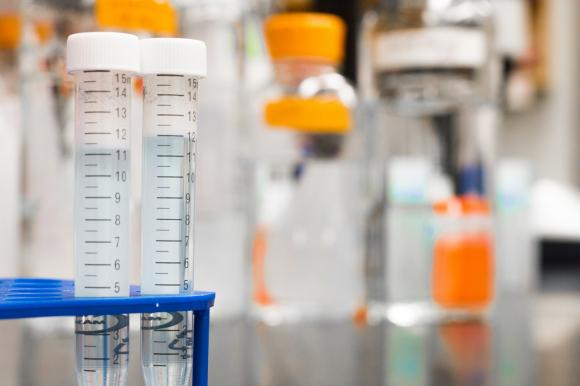 Diagnostic incontinence : un test pour les vessies hyperactives